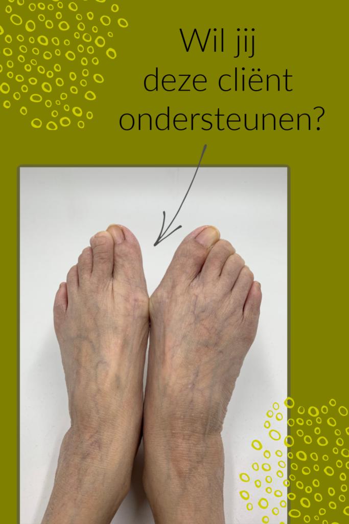 Cliënt ondersteunen met voetreflexologie - hallux valgus